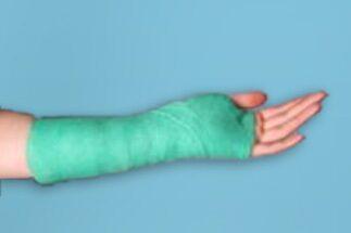 Полиуретановый гипс на руку станция шпаклевочная для шпатлевки производительность метров цена